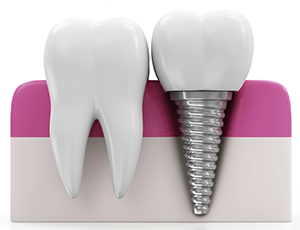 types of tooth implants