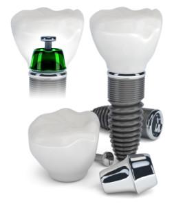 Dental-Implant-Teeth