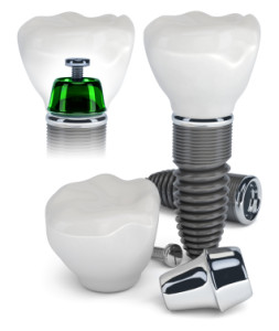 Dental-Implant-Teeth