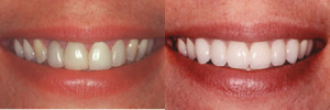 Smile Makeover - White Teeth